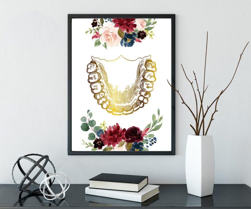 Tranh Hàm Răng Nhũ Vàng In Canvas YH00070
